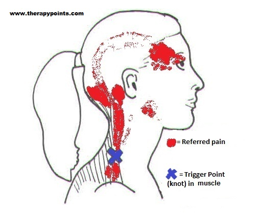neck trigger points picture