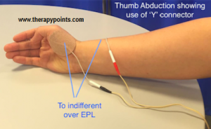 Functional Electrical Stimulation UE