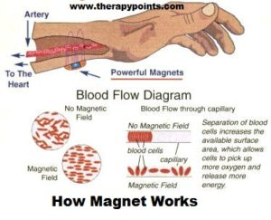 magnetic therapy work