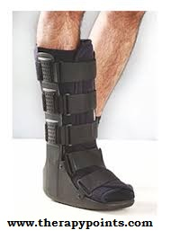 Fractured Ankle Management